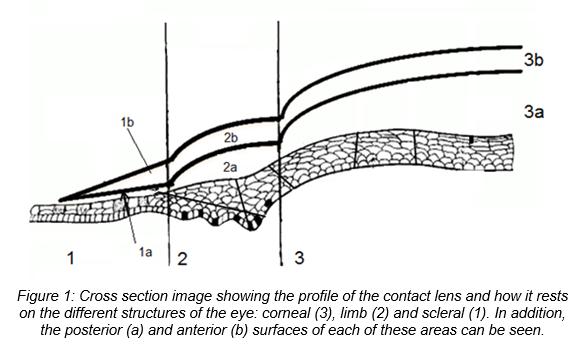"""PresbyCustom"":  New customizable contact lenses to correct presbyopia"
