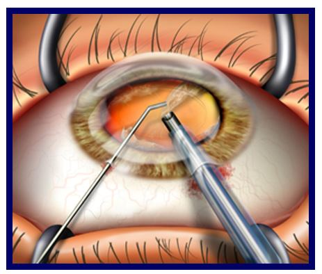 A New Ophthalmic Viscoelastic Device (OVD) for Cataract Surgery