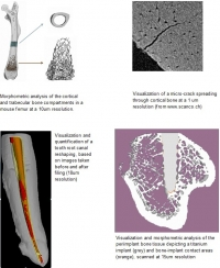 analysis of mineralized tissues using microCT